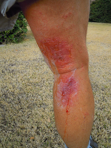 poison oak rash treatment. Calf Rash