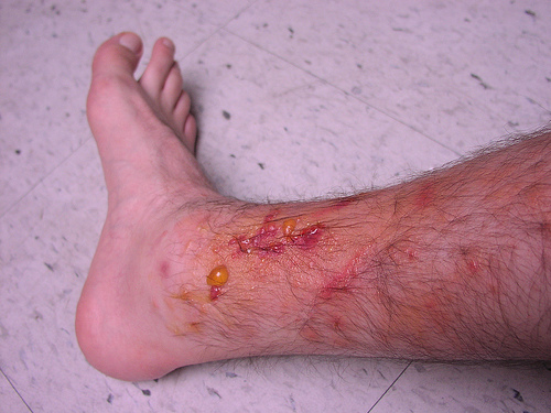 poison oak rash pictures. Leg Rash